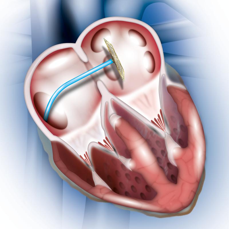 ASD - Understanding Heart Condition - Patients - Occlutech